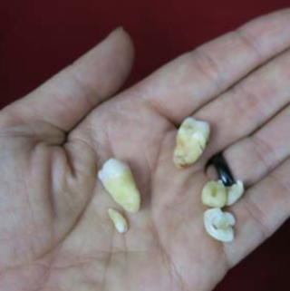 the whole truth about your wisdom teeth