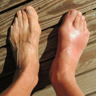 How to Remove Uric Acid Crystallization in Joints Fast (Gout and Joint pain)
